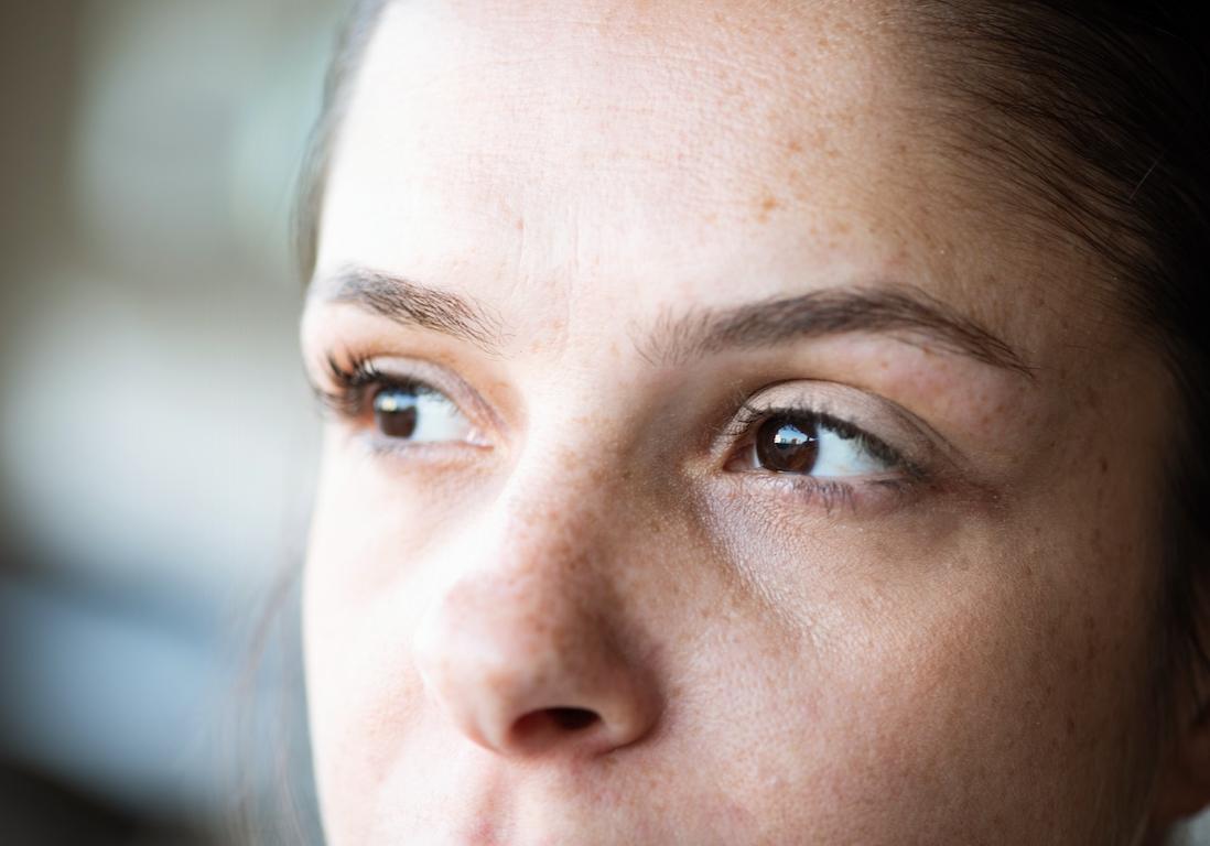 Chirurgie esthétique : « J'avais l'air sévère » - Elle