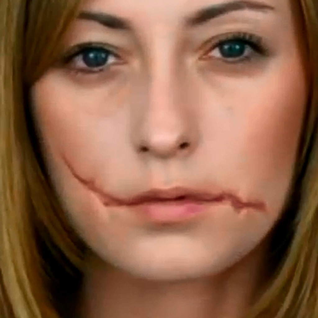 cicatrice bebe visage