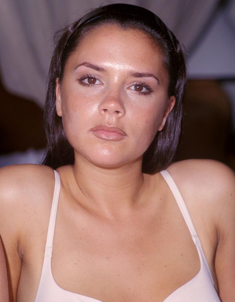 Victoria Beckham chirurgie esthétique