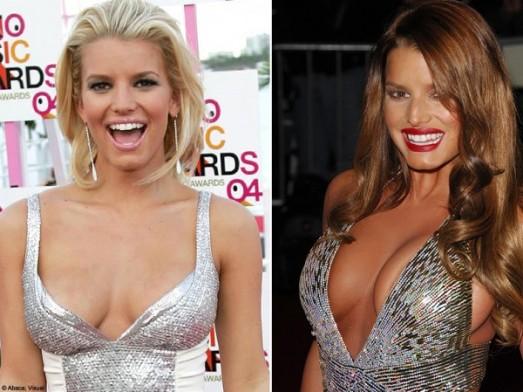 Stars : les ratés de la chirurgie esthétique Jessica Simpson