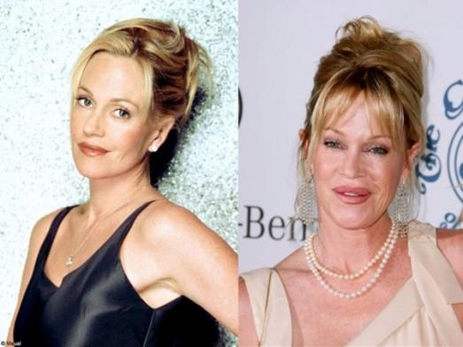 Stars : les ratés de la chirurgie esthétique Melanie Griffith